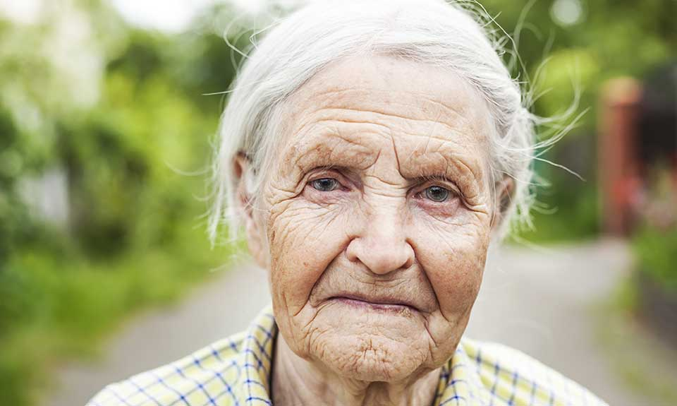 Old Lady with tooth loss, bone loss, jaw loss, no implants.